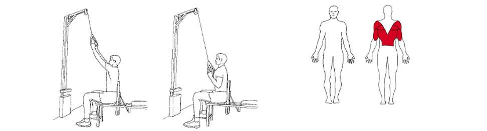 Illustrasjon av slik utføres nedtrekk
